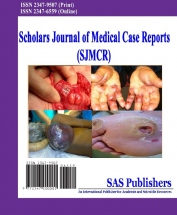 Scholars Journal of Medical Case Reports